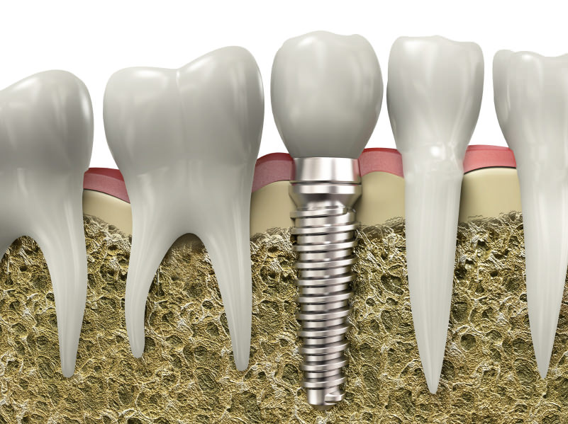 Dental implants are available from our Yuba City dentists.