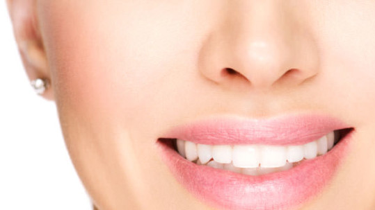 Veneers correct a number of problems with smiles.