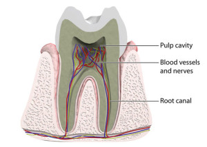 Root Canal Therapy is essential for preserving diseased teeth.