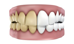 Even teeth darkened by trauma can be made white with endodontic procedures.