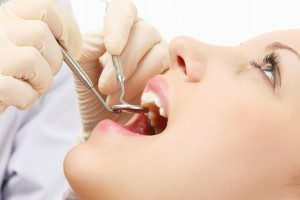 Oral Cysts