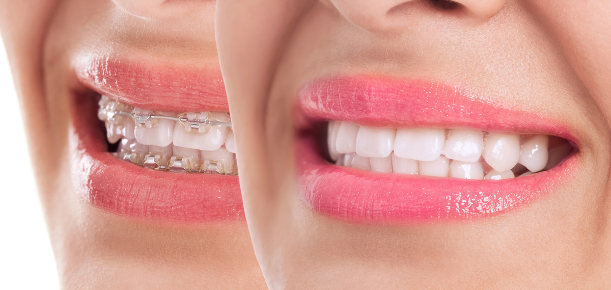 An example of results attainable with the newer clear braces.