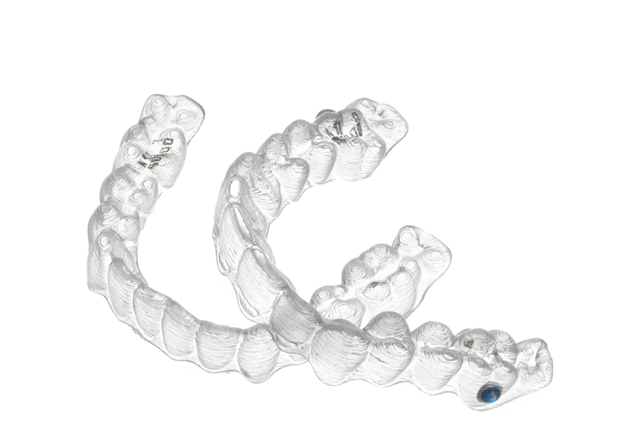 Invisalign teen aligners are designed to help teenagers use their orthodontics.