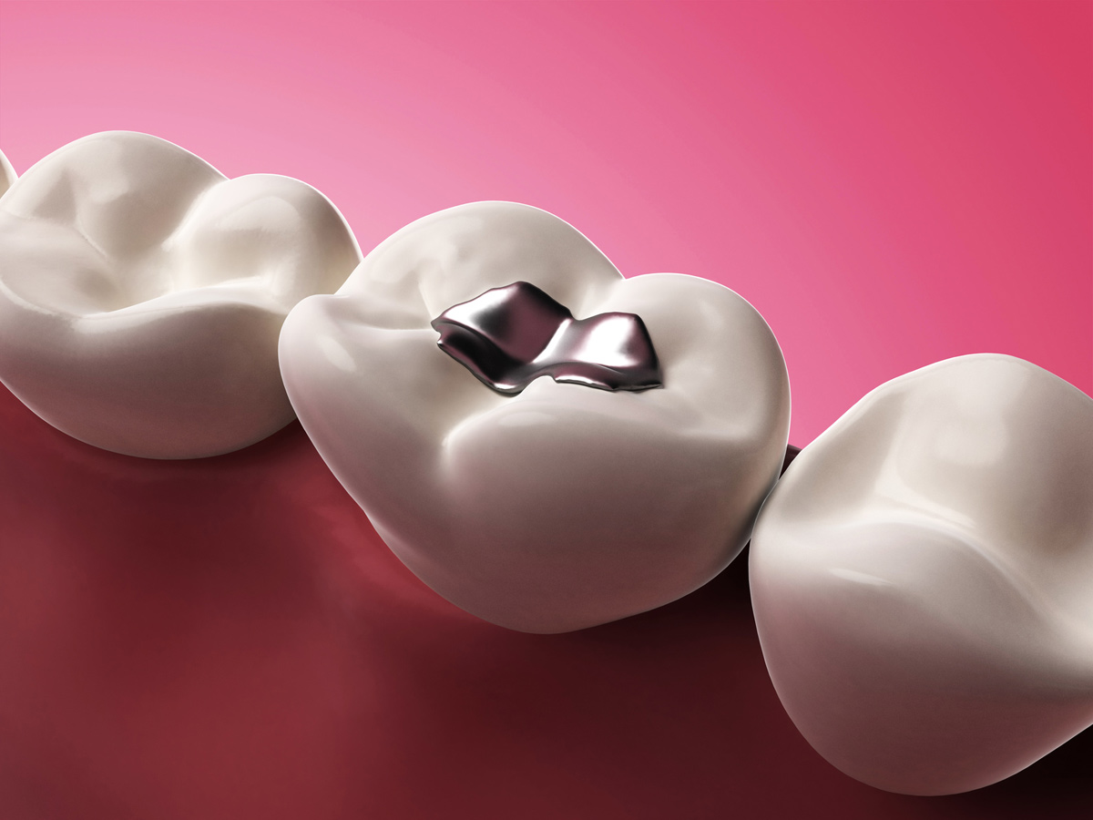 An image of an amalgam filling represents the question of whether these should be replaced.