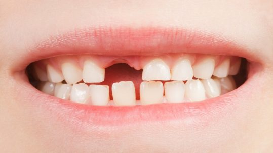 Teeth fall out as new ones come behind. Should you help it along?