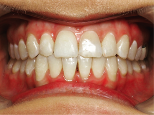 Invisalign can be used over various treatment periods, based on the complexity of the case.