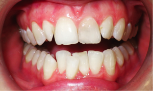 Invisalign is a clear aligner orthodontic system.